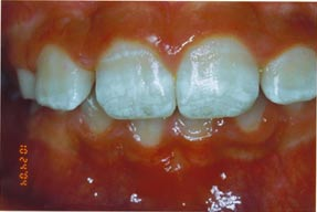 Discoloration from enamel trouble due to undiagnosed celiac. Photo Courtesy of Ted Malahias, DDS