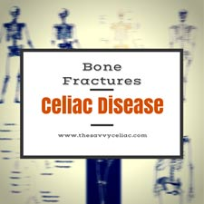 Bone-Fractures-sm